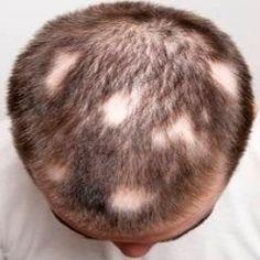 alopecia aerata