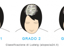 alopecia femminile - scala ludwig