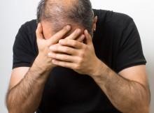 alopecia psicogena o da stress