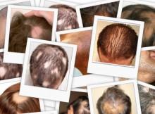 casi di alopecia