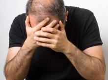protesi e parrucchini - alopecia