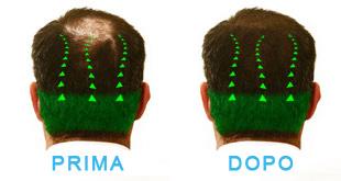 trapianto di capelli - prima e dopo