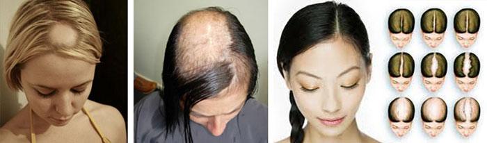 cure alopecia femminile
