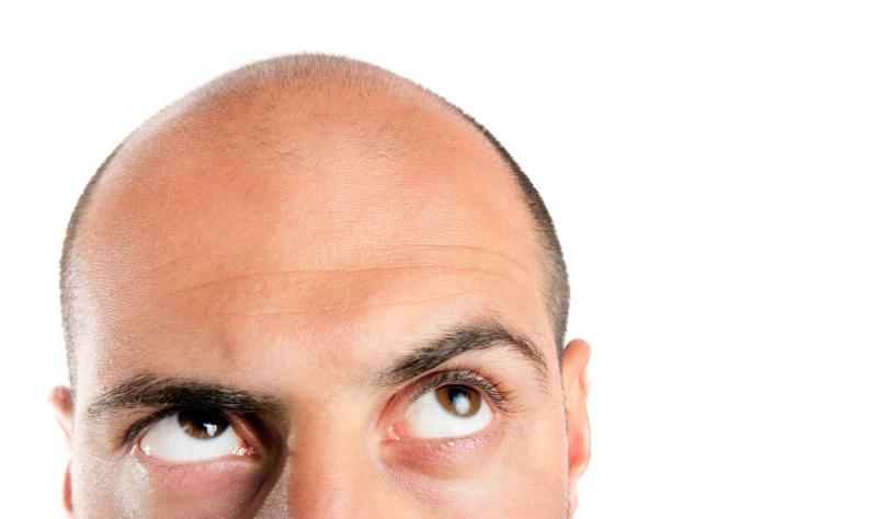 calvizie alopecia androgenetica