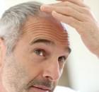 cosa è l'alopecia