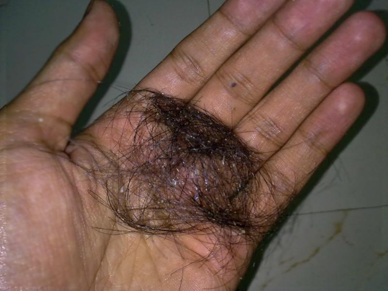 perdita capelli in mano
