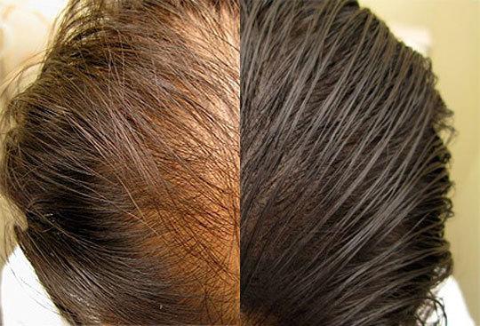 pigmentazione tricologica prima e dopo