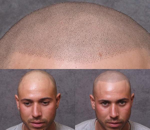 tricopigmentazione prima e dopo