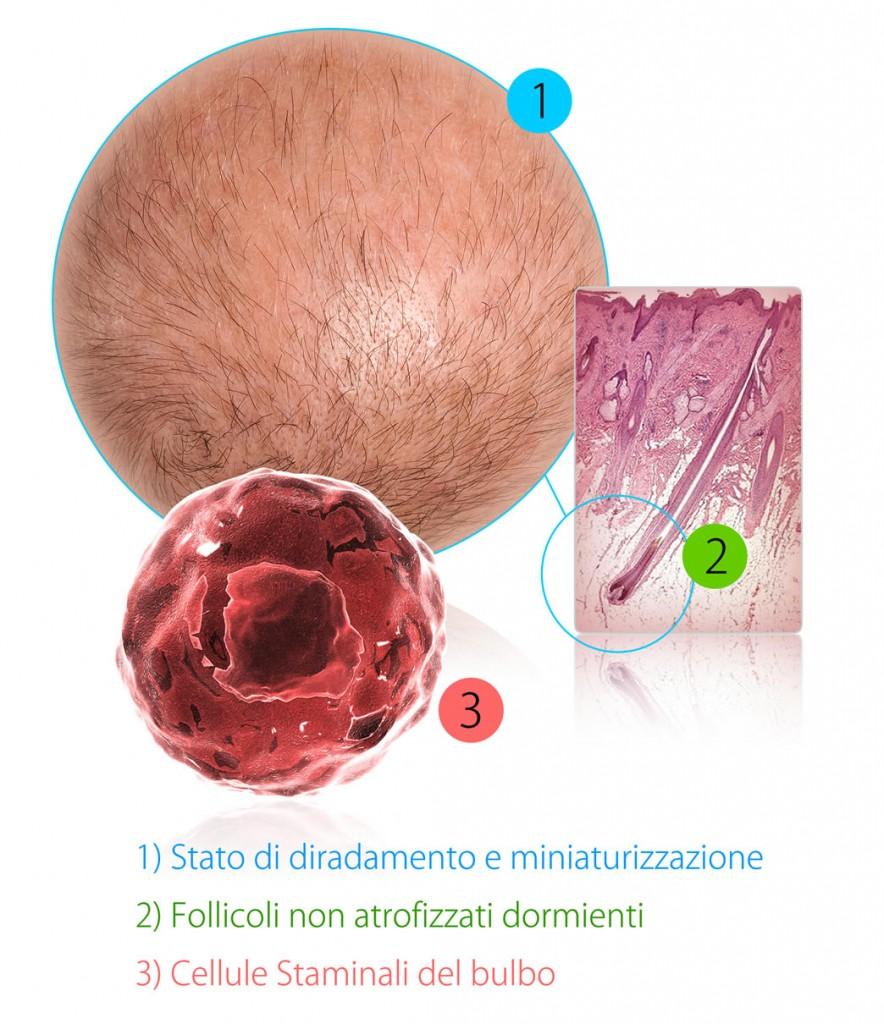 Alopecia e cura dei capelli