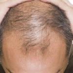 Alopecia Medicina Rigenerativa