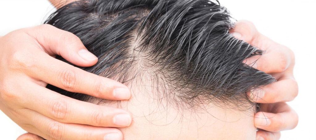 Le principali cause della caduta dei capelli